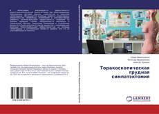 Bookcover of Торакоскопическая грудная симпатэктомия