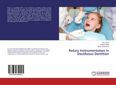Bookcover of Rotary Instrumentation in Deciduous Dentition