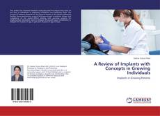 Bookcover of A Review of Implants with Concepts in Growing Individuals