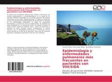 Bookcover of Epidemiología y enfermedades pulmonares más frecuentes en pacientes con VIH/SIDA