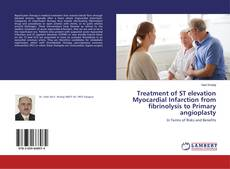Bookcover of Treatment of ST elevation Myocardial Infarction from fibrinolysis to Primary angioplasty