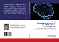 Copertina di Automated detection of new MS lesions in longitudinal MRI