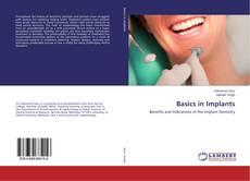 Обложка Basics in Implants