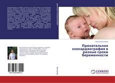 Bookcover of Пренатальная эхокардиография в разные сроки беременности