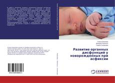 Обложка Развитие органных дисфункций у новорожденных при асфиксии