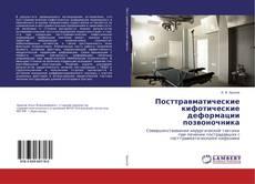 Bookcover of Посттравматические кифотические деформации позвоночника