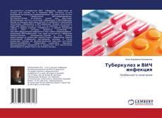 Bookcover of Туберкулез и ВИЧ инфекция