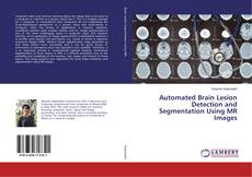 Bookcover of Automated Brain Lesion Detection and Segmentation Using MR Images