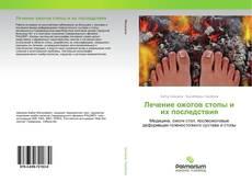 Обложка Лечение ожогов стопы и их последствия