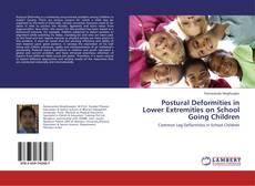 Bookcover of Postural Deformities in Lower Extremities on School Going Children