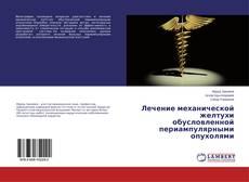 Couverture de Лечение механической желтухи обусловленной периампулярными опухолями