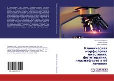 Copertina di Клиническая морфология миастении, фототерапия, плазмаферез в её лечении