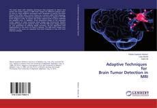 Couverture de Adaptive Techniques for Brain Tumor Detection in MRI