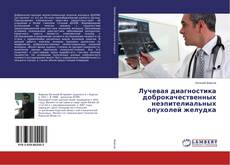 Bookcover of Лучевая диагностика доброкачественных неэпителиальных опухолей желудка