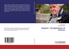 Bookcover of Implant - Complications & Failures