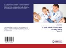 Cone beam computed tomography的封面