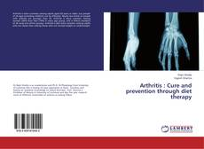 Bookcover of Arthritis : Cure and prevention through diet therapy