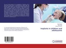 Copertina di Implants in children and adolescents