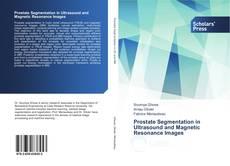 Buchcover von Prostate Segmentation in Ultrasound and Magnetic Resonance Images