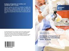Bookcover of Incidence of Impaction of maxillary and mandibular teeth- A study