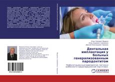 Bookcover of Дентальная имплантация у больных генерализованным пародонтитом