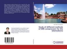 Buchcover von Study of different methods of MRI compression for the telemedicine