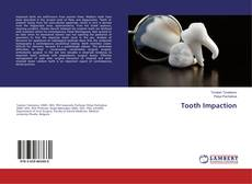 Bookcover of Tooth Impaction