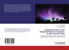Bookcover of Repigmentation after depigmentation of gingiva- A split mouth study
