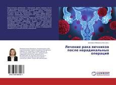 Bookcover of Лечение рака яичников после нерадикальных операций