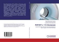 Couverture de ПЭТ/КТ с 11С-Холином