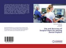Bookcover of Use and Accuracy of Surgical Stent for placing Dental Implant