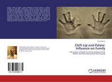 Copertina di Cleft Lip and Palate: Influence on Family