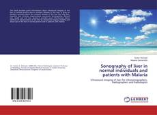 Bookcover of Sonography of liver in normal individuals and patients with Malaria