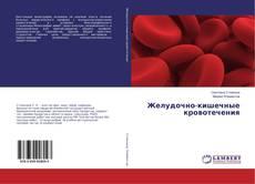 Copertina di Желудочно-кишечные кровотечения