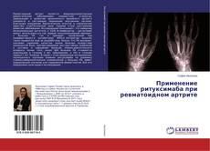 Обложка Применение ритуксимаба при ревматоидном артрите