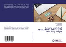 Buchcover von Severity analysis of Osteoarthritis of knee joint from X-ray images