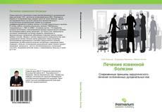 Bookcover of Лечение язвенной болезни