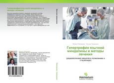 Bookcover of Гипертрофия язычной миндалины и методы лечения
