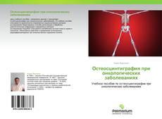 Bookcover of Остеосцинтиграфия при онкологических заболеваниях