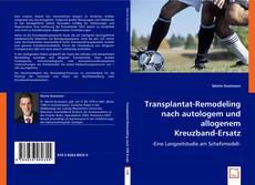 Bookcover of Transplantat-Remodeling nach autologem und allogenem  Kreuzband-Ersatz