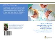 TRAIL induziert Metastasierung der Pankreasadenokarzinomzellen kitap kapağı