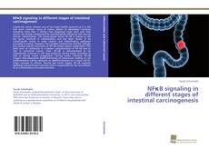 Bookcover of NFκB signaling in different stages of intestinal carcinogenesis