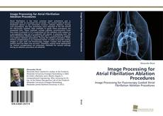 Bookcover of Image Processing for Atrial Fibrillation Ablation Procedures