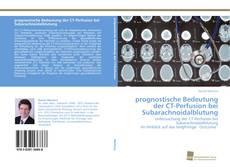 Bookcover of prognostische Bedeutung der CT-Perfusion bei Subarachnoidalblutung