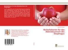 Bookcover of Risikofaktoren für das Adenokarzinom des Ösophagus