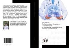 Bookcover of Traitement de l'image en radiotherapie