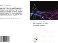Bookcover of IRM du plexus brachial