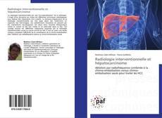 Bookcover of Radiologie interventionnelle et hépatocarcinome