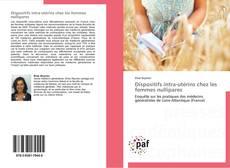 Обложка Dispositifs intra-utérins chez les femmes nullipares