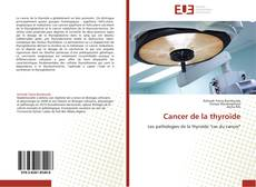 Couverture de Cancer de la thyroïde